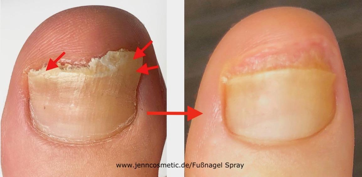 Hohlraum-unter-dem-Zehennagel-vorher-nacher-jenncosmetic