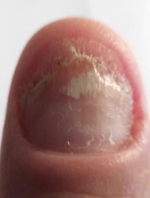 fingernagelpilz-jenncosmetic
