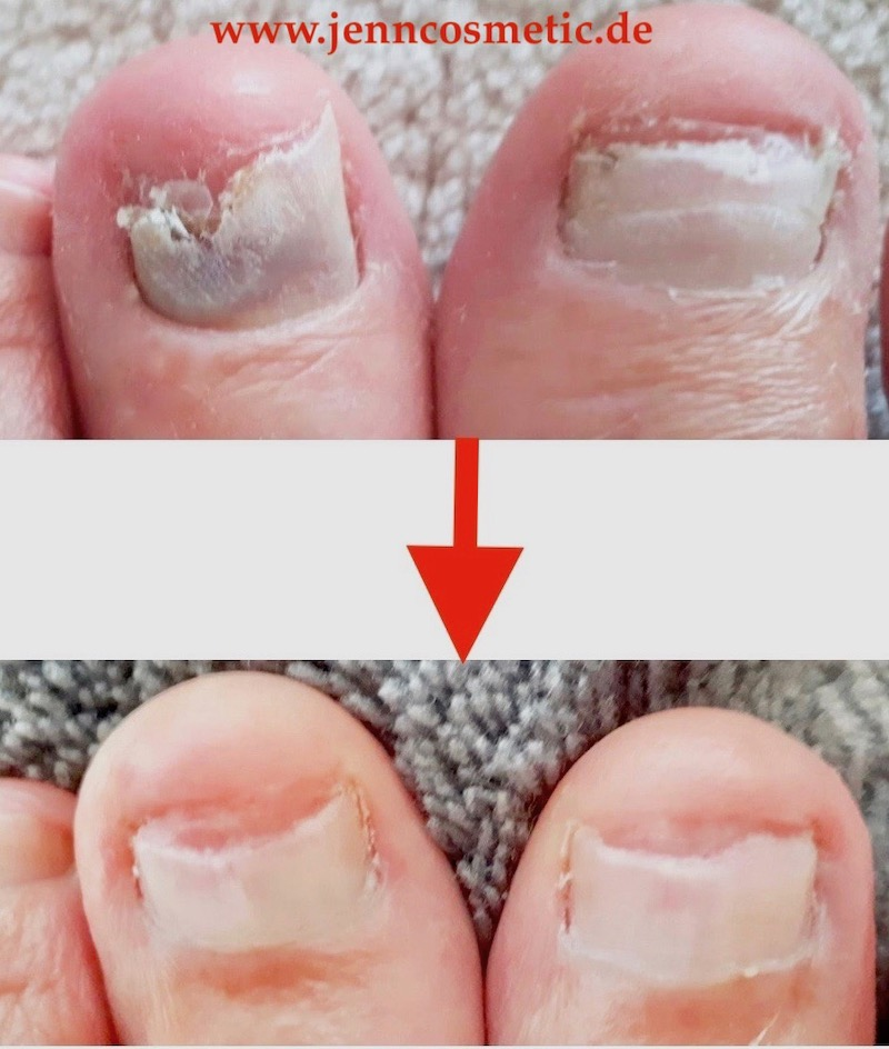 nagelpilz-bilder-jenncosmetic-1v6AWV5GJyIgF1