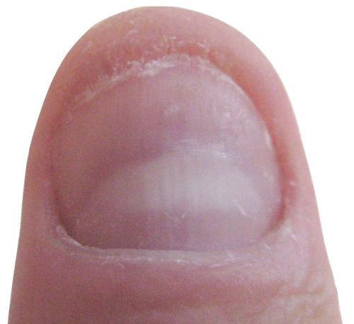finger-nagelpilz-fingernagelpilz-jenncosmetic