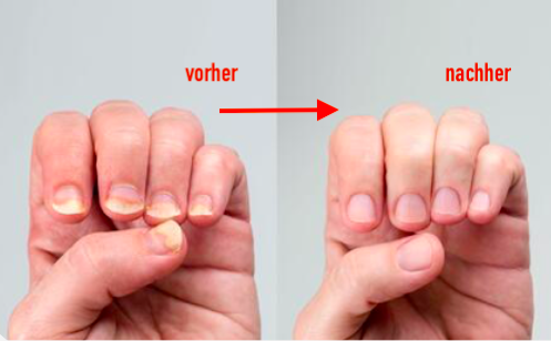 fingernagelpilz-finger-nagelpilz-jenncosmetic