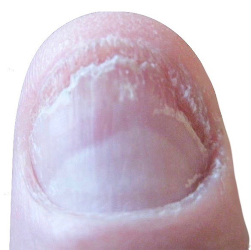 fingernagelpilz-jenncosmetic-finger-nagelpilz