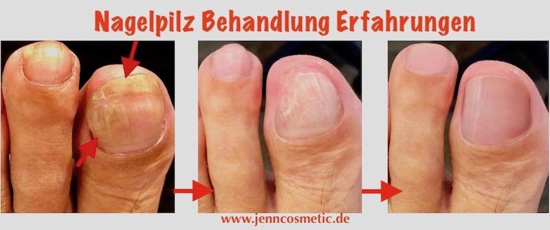 1-nagelpilz-behandlung-Erfahrungen-jenn-cosmetic